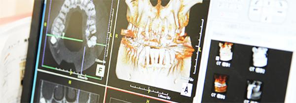 症例紹介 優ビル歯科医院の症例をご紹介します